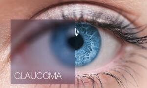 Trattamento laser Glaucoma