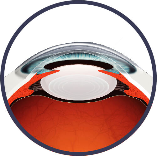 Intervento laser per cataratta refrattiva
