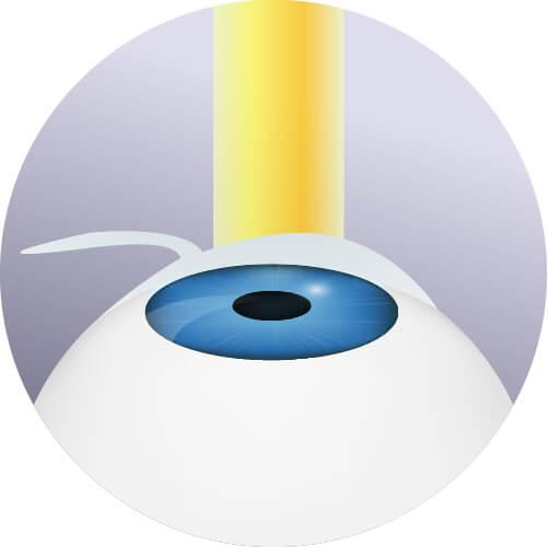 Laser ad eccimeri - Rimodellamento