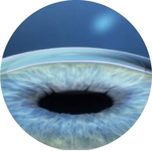 Laser Smile miopia - Correzione