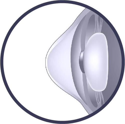 Malattie occhi: Cheratocono