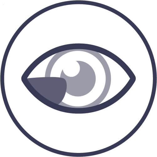 Malattie oculari: pterigio