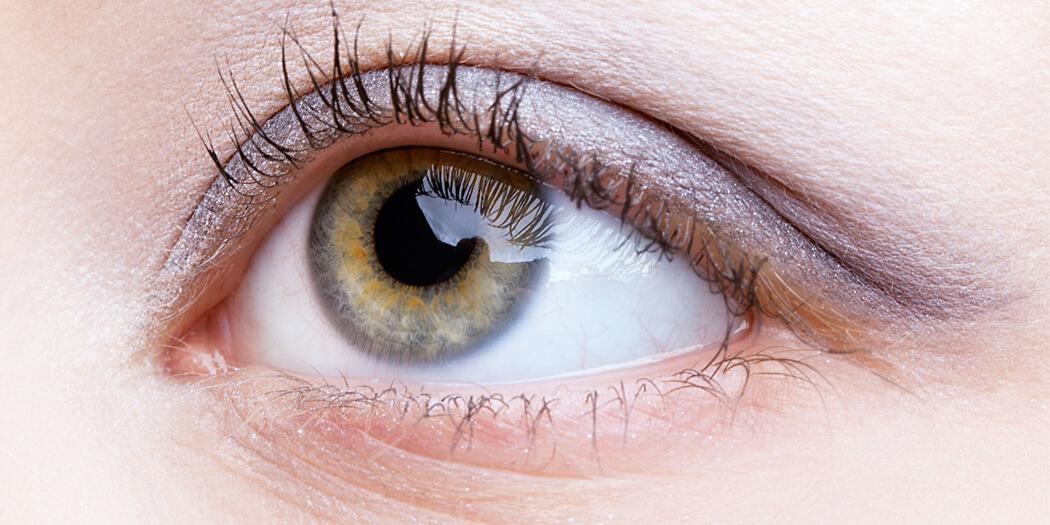 Operazione cataratta con lenti intraoculari