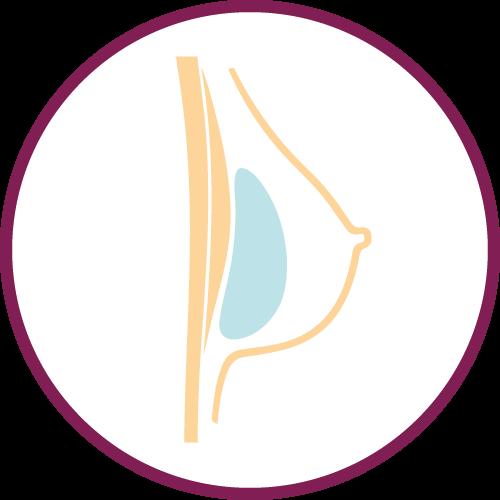 Aumento seno con protesi mammarie