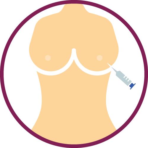Preparazione intervento per rifarsi il seno